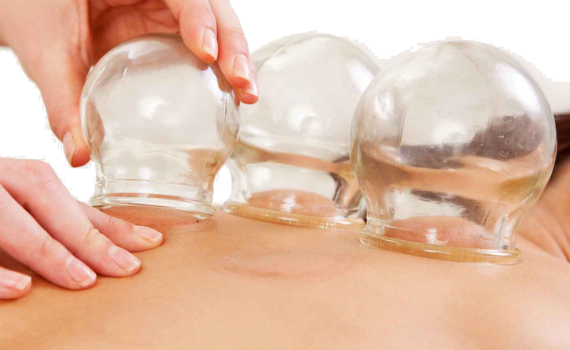 cupping-massage